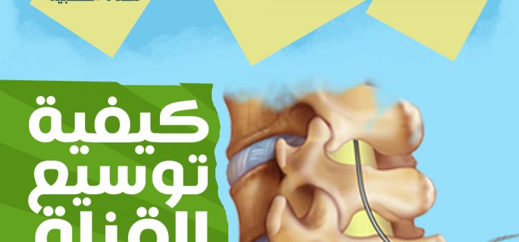 توسيع القناة العصبية بدون جراحة